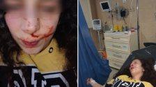 فتاة تتعرض للضرب على خلفية إشكال وتلاسن بينها وبين سيدة في كفردونين!