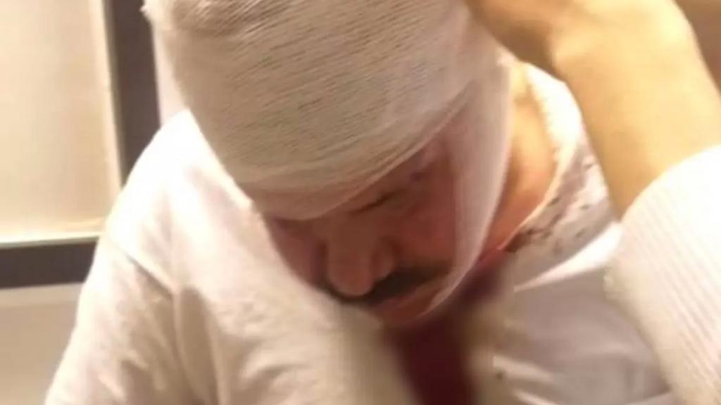 بالصور/ مجهولون إعتدوا بالضرب على طبيب في صيدا