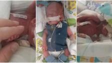 """بالصور/ """"بحجم راحة اليد""""... نجاة أصغر طفل في العالم بعد ولادته بعمر أقل من 5 أشهر"""