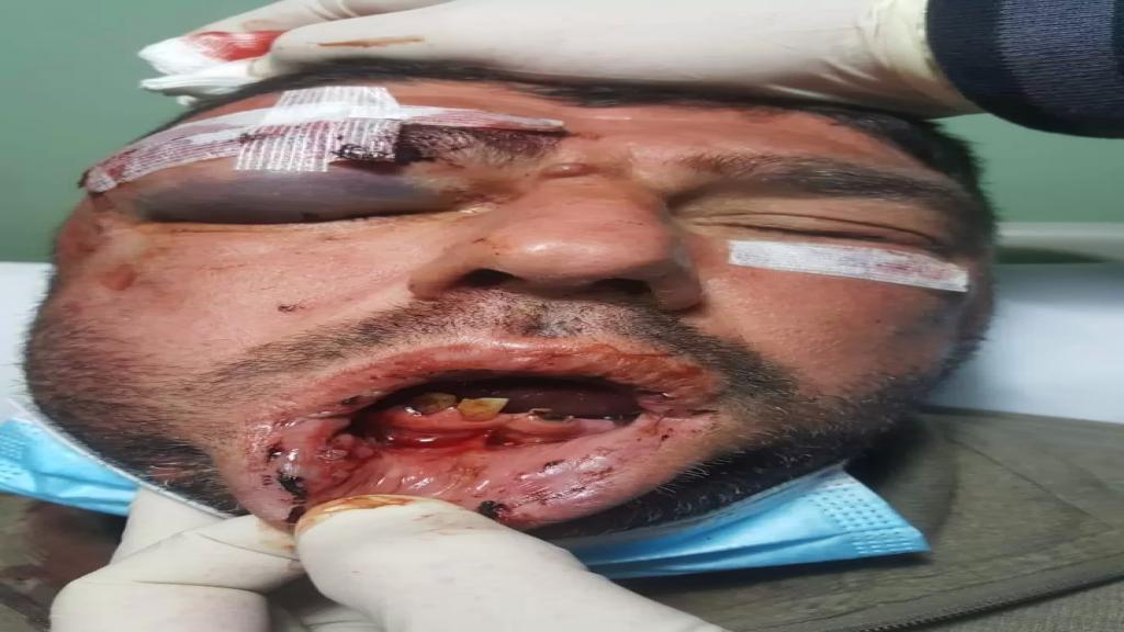 أبرحوه ضرباً وسط سوق بنت جبيل .. 3 أشخاص اعتدوا بشكل همجي على مواطن حتى غاب عن الوعي