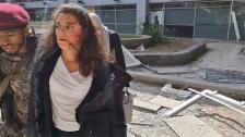 """بعد نجاتها من انفجار مطار عدن... تغريدةٌ مؤثرة لـ يارا خواجةٌ: """"أيامٌ لأزيل قطبي وأفحص رئتي وأشهرٌ حتى أمشي... حكون بخير بكم الدعم الذي ألقاه"""""""