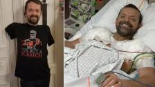 بالصور/ أول عملية زرع كتفين وذراعين في العالم لرجل عانى لـ20 سنة.. اثر حادثة تسببت ببتر ذراعيه