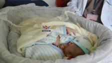بالصورة/ اليونيسيف تنقل توأمين سياميّين من اليمن للأردن لإخضاعهما لعملية جراحية لفصلهما