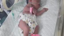 """الطفلة """"زينب"""" بحاجة ماسة لإجراء عملية سحب مياه من الرأس في مستشفى الجامعة الأميركية.. تبقّى مبلغ ٢٣ مليون"""