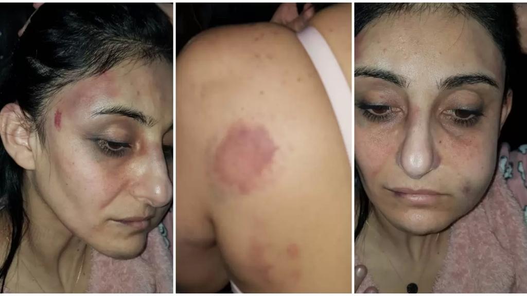 """بالصور/ الاعلامي جو معلوف:""""رانيا ضحية جديدة من ضحايا العنف.. التقت بطليقها للمطالبة بحقوقها، فانهال عليها بالضرب والإعتداء الوحشي محاولاً قتلها"""""""
