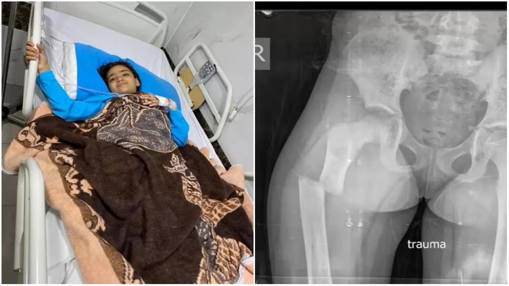 """الصغيرة """"رهف"""" أصيبت بكسر في فخذها وهي مصابة بكورونا ولا غرفة شاغرة لها في المستشفيات لإجراء العملية.. وخالها يناشد"""