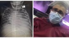 """طبيب لبناني ينشر صورة شعاعية لطفل ويعلق: """"الصورة الأخيرة لصبي عمره 9 سنوات مصاب بكورونا توفى اليوم..الحالة الوحيدة التي مرت علي بمضاعفات خطيرة لمثل هذا العمر"""""""