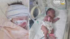بعد وضع صحي دقيق منذ الولادة.. الطفلة زينب الشنا خضعت للعملية بدعم من المبادرين وتعافت