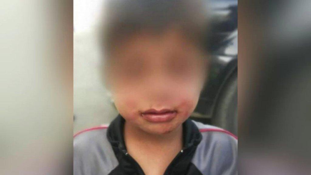 بالصور/ أقدم على تعنيف ابنه البالغ من العمر 3 سنوات بسبب انزعاجه من كثرة بكائه!