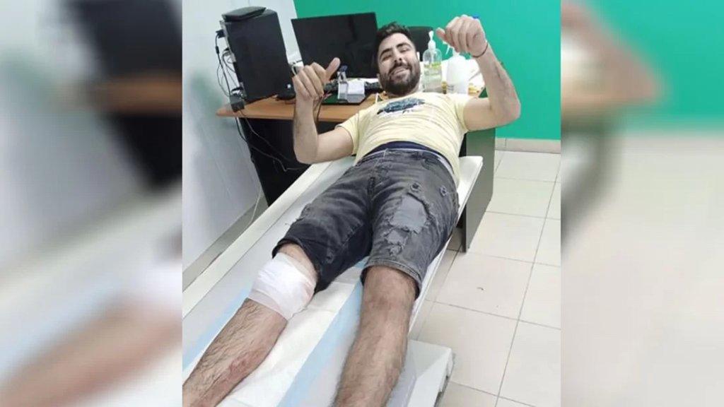 إصابة شاب بشظية قذيفة صاروخية أطلقها مجهول في جبل محسن