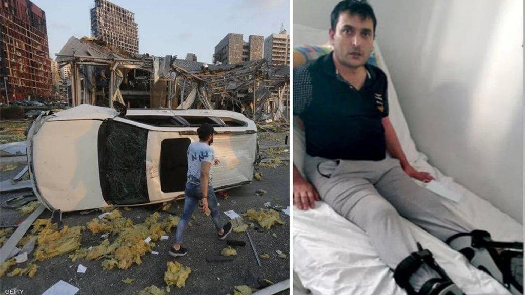 """""""فقدت أغلى ما أملك... يدي التي أغمر بها أولادي"""".. أمٌّ خسرت يدها ورب أسرة أصيب بالشلل.. إنفجار المرفأ خلّف المئات من ذوي الإحتياجات الخاصة"""