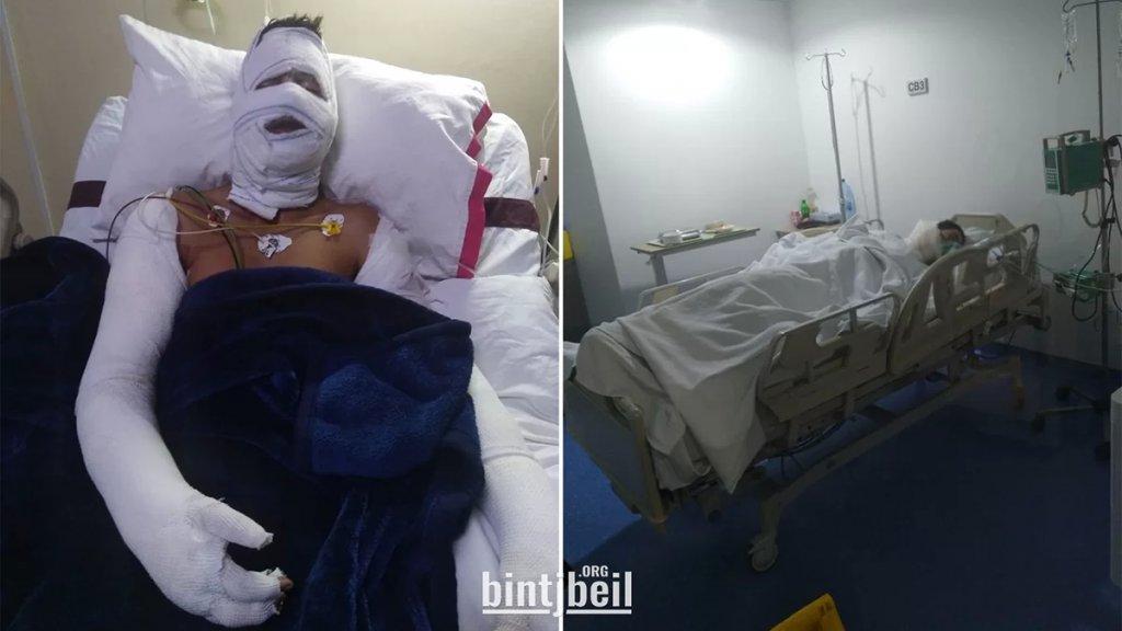 عن حادثة اشتعال الدراجة بالبنزين التي غيّرت حياة محمد.. ابن الـ 18 على سرير المستشفى بعد إصابته بحروق ومشوار التعافي منهك ماديًّا وجسديًّا