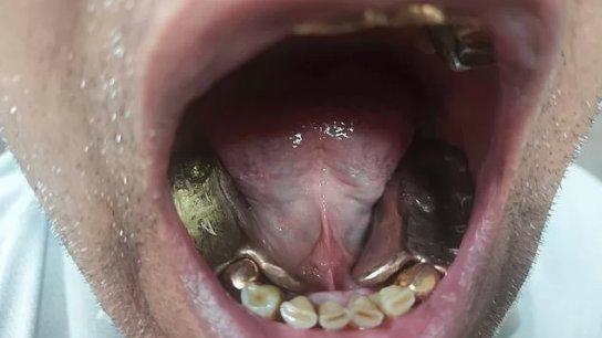 ابتسَمَ فورَّط نفسه: مهرب فاشل حاول تهريب ذهب قيمته حوالي 5000$ من الجمارك في مطار دلهي بعدما وَضَعه في أسنان اصطناعية!