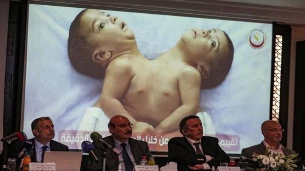 """في عملية """"نادرة"""" استمرت 8 ساعات.. نجاح فريق طبي أردني بفصل التوأمين السياميين اليمنيين """"أحمد ومحمد"""""""